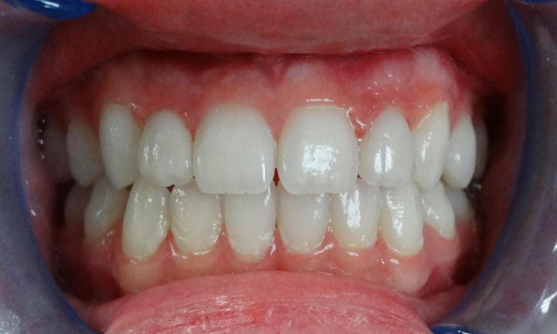 after - small, misaligned lateral incisors have a much nicer appearance