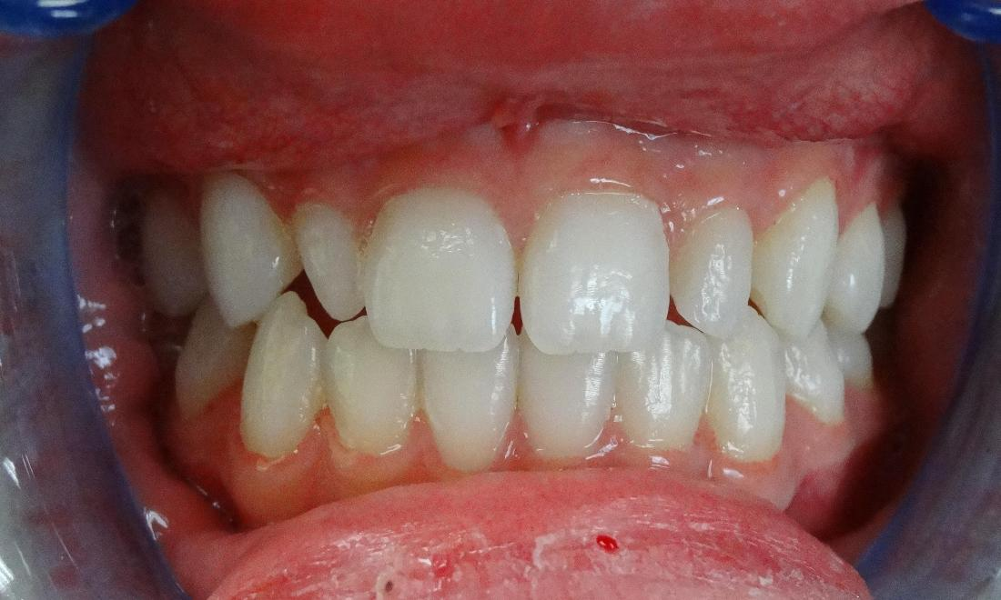 before - small, misaligned lateral incisors