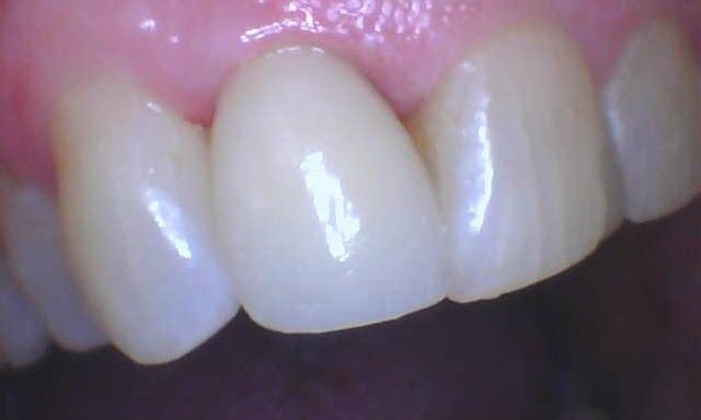 Fractured-Tooth-Dental-Crown-After-Image