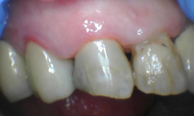 Tooth-Colored-Filling-After-Image