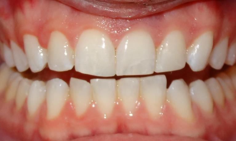 Trauma-tooth-colored-fillings-After-Image