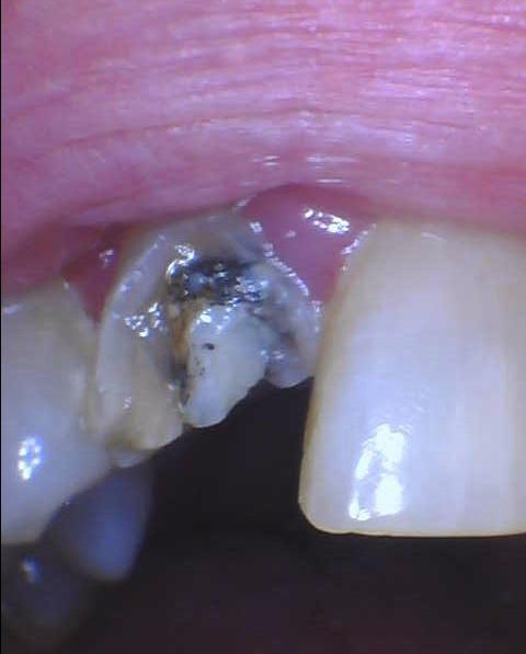 Fractured-Tooth-Dental-Crown-Before-Image