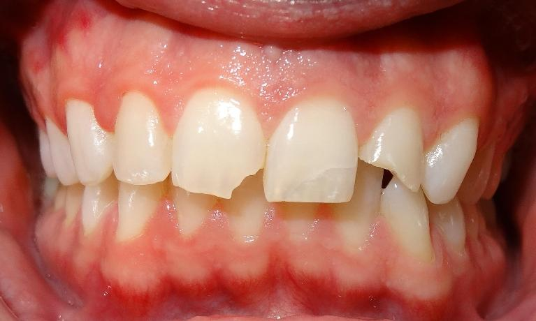 Trauma-tooth-colored-fillings-Before-Image